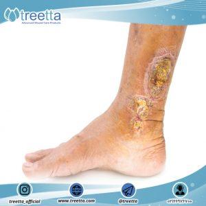 درمان موضعی زخم وریدی