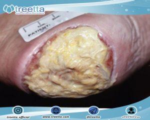 درمان زخم بستری که نمی توان درجه آن را تشخیص داد