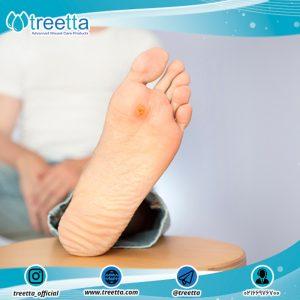 اصول مراقبت از پای دیابتی