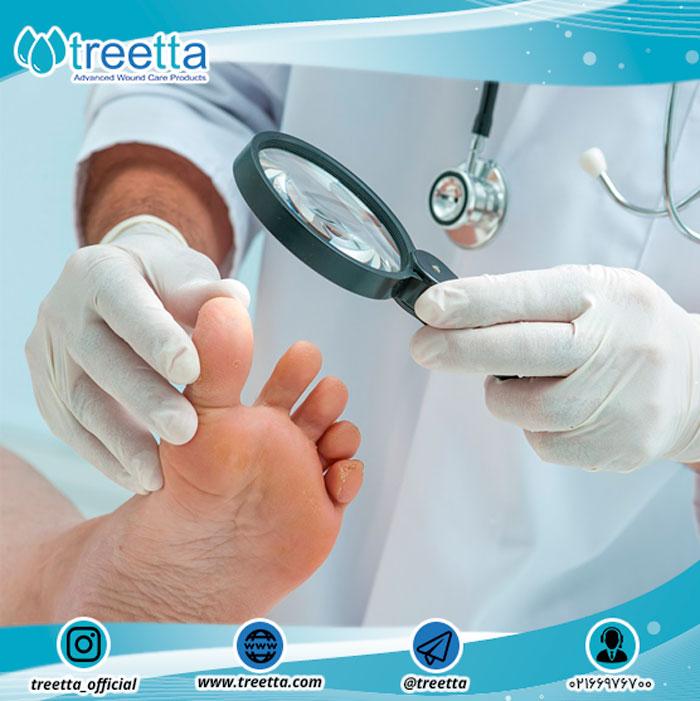 آزمون پای دیابتی