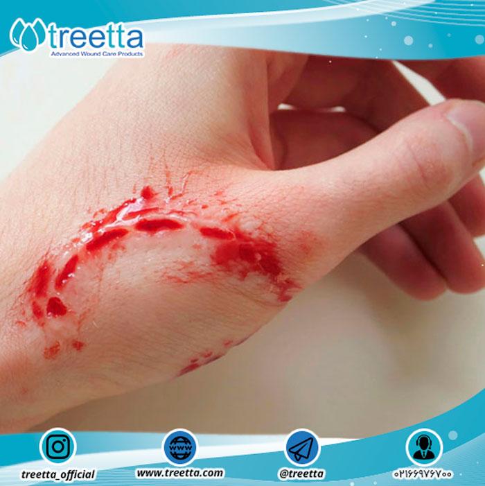 درمان زخم گاز گرفتن توسط انسان