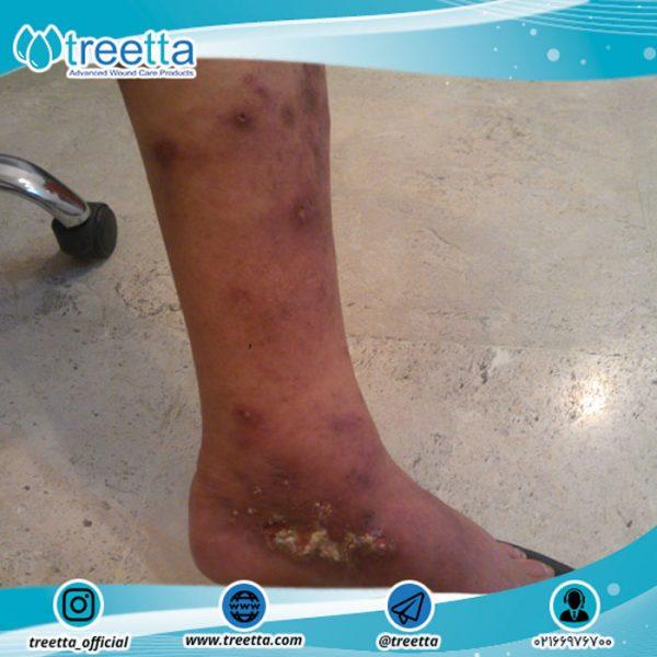 زخم وریدی (زخم واریس = زخم پا)
