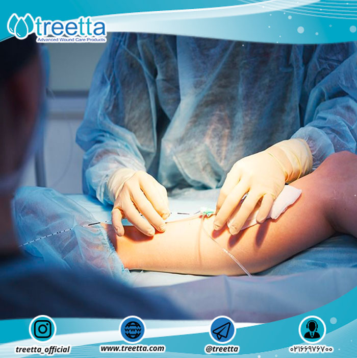دلایل به وجود آمدن عفونت در زخم جراحی