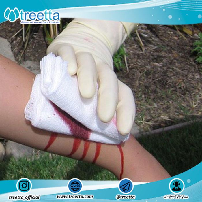 9 نکته ی اساسی برای ارائه ی کمک های اولیه در مراقبت از زخم