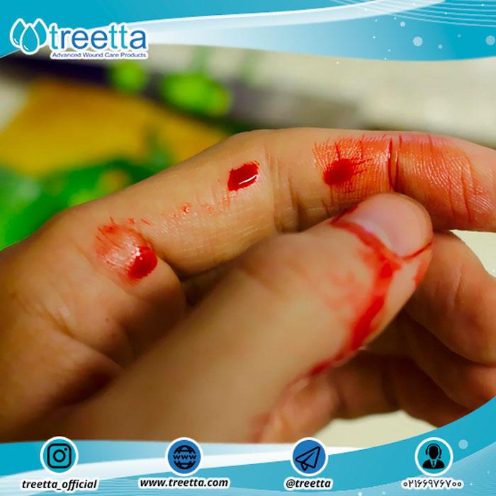 انواع مختلف زخم ها