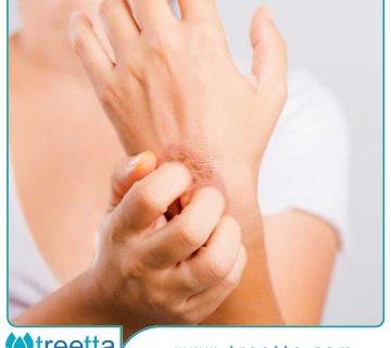خارش زخم نشانه چیست ؟ برای درمان خارش پوست چه کنیم ؟