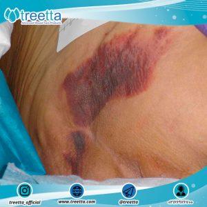 مشکل زخم بستر چیست؟