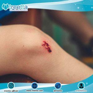چگونه به بهبود زخم ها در مدت زمان کوتاه تر کمک کنیم؟