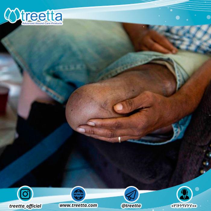پیامدهای قطع عضو پا در دیابت