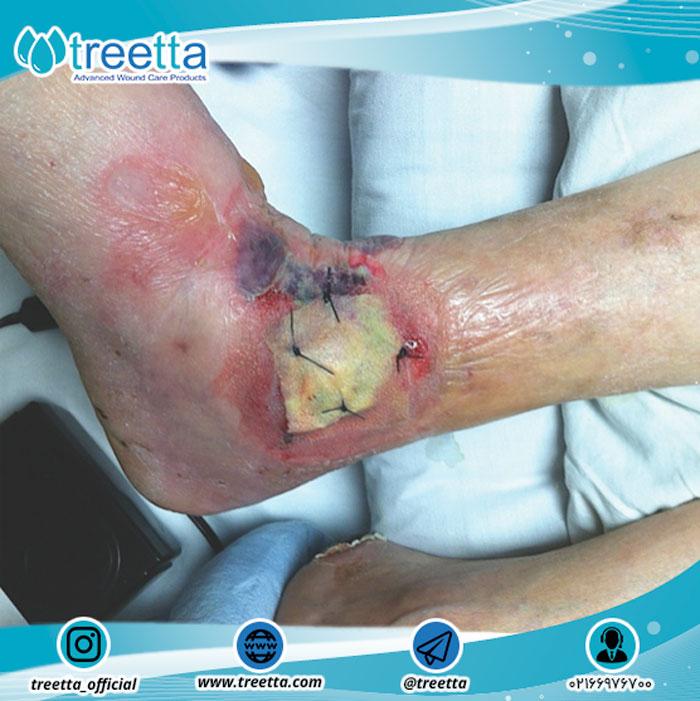 زخم های عفونی؛ علت، علائم و درمان