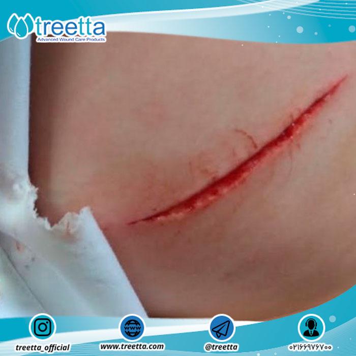 بریدگی در زخم های خارجی