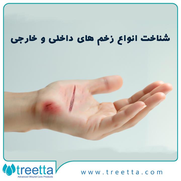 شناخت انواع زخم های داخلی و زخم های خارجی