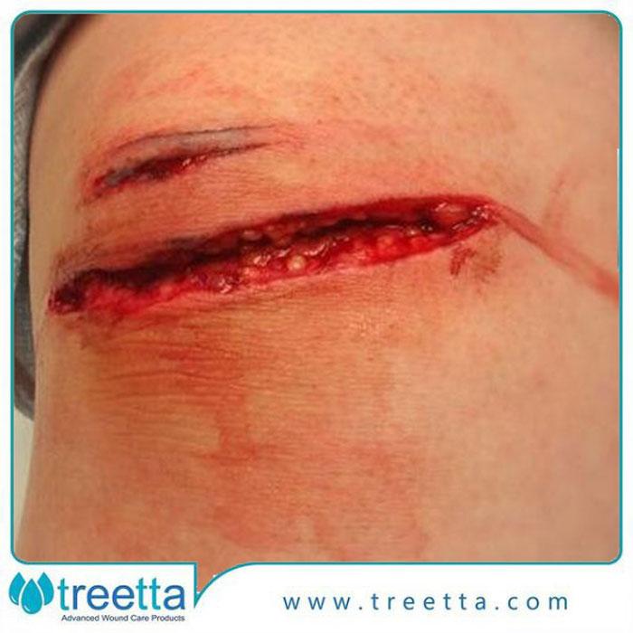 انواع زخم باز و درمان های خانگی برای آن