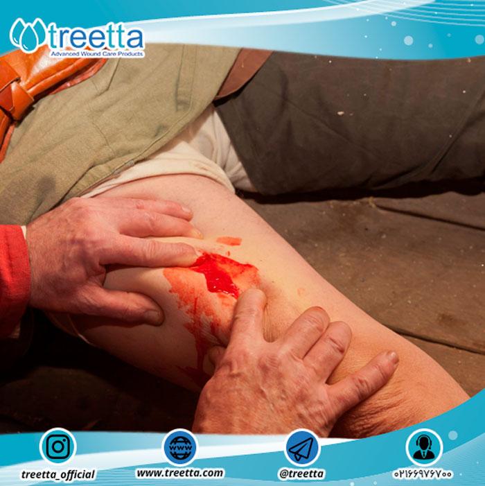 دستهبندی زخم ها: حاد و مزمن