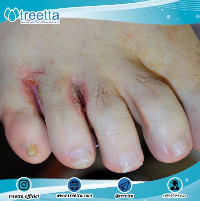 زخمهای برقی