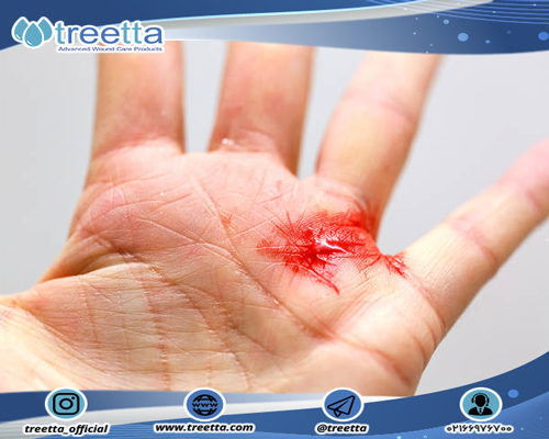 دستهبندی انواع زخمها در تریتا