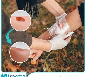 زخم چیست - دسته بندی زخم - درمان زخم