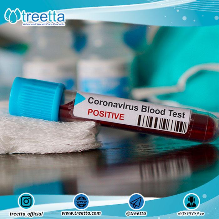 مراکز انجام آزمایش ویروس کرونا