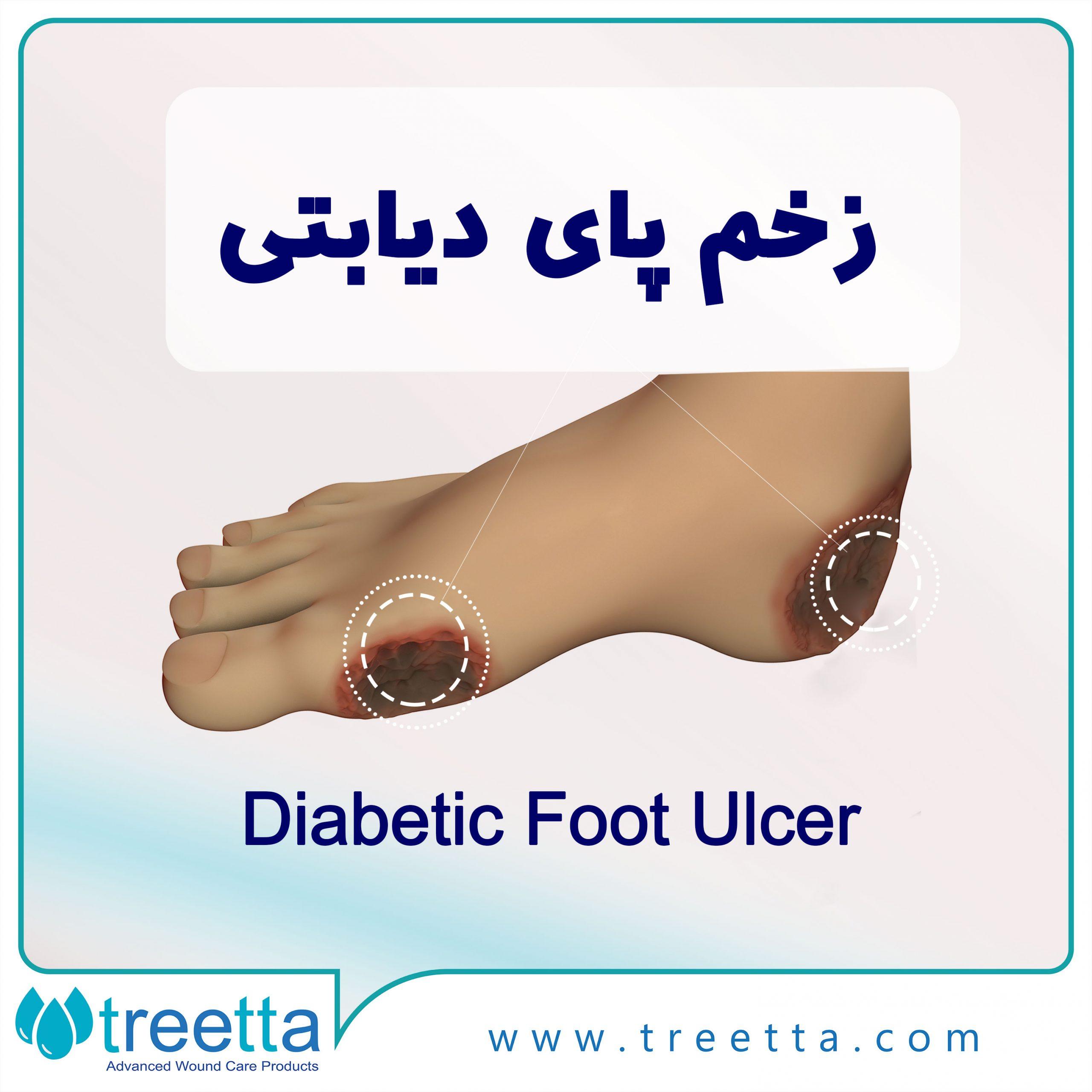 زخم پای دیابتی را بشناسید و به صورت قطعی درمان کنید