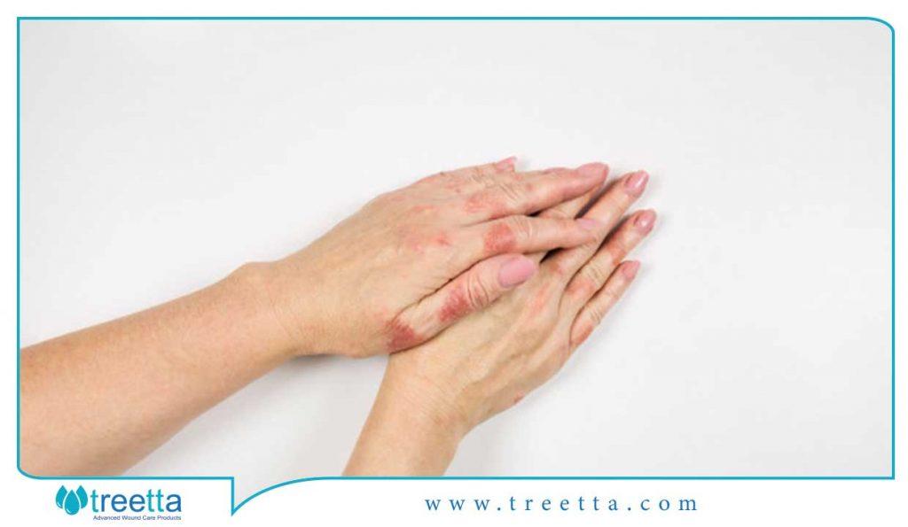 روشهای درمان زخم درماتیت ( اگزما )