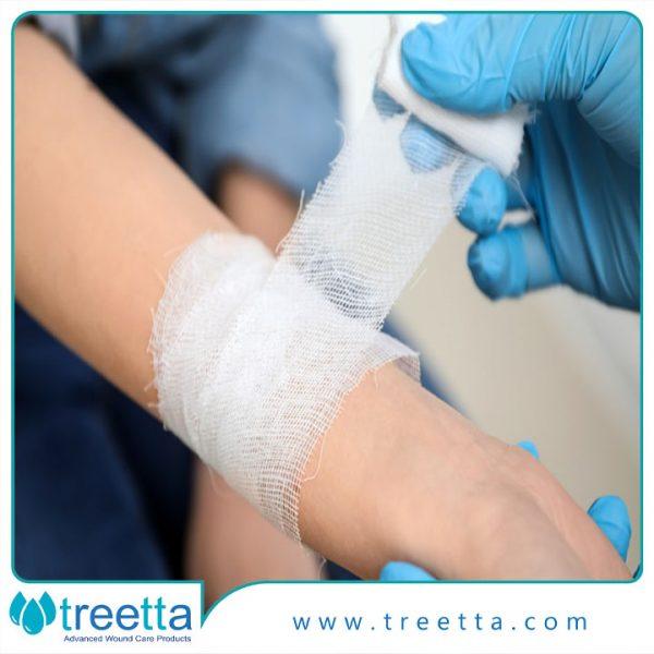 راهنمای درمان زخم سوختگی