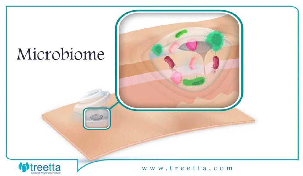 ژنتیک بیمار با ترکیب میکروبیوم مزمن زخم و ترمیم آن مرتبط است