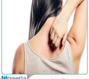 درمان خانگی اگزمای پوستی