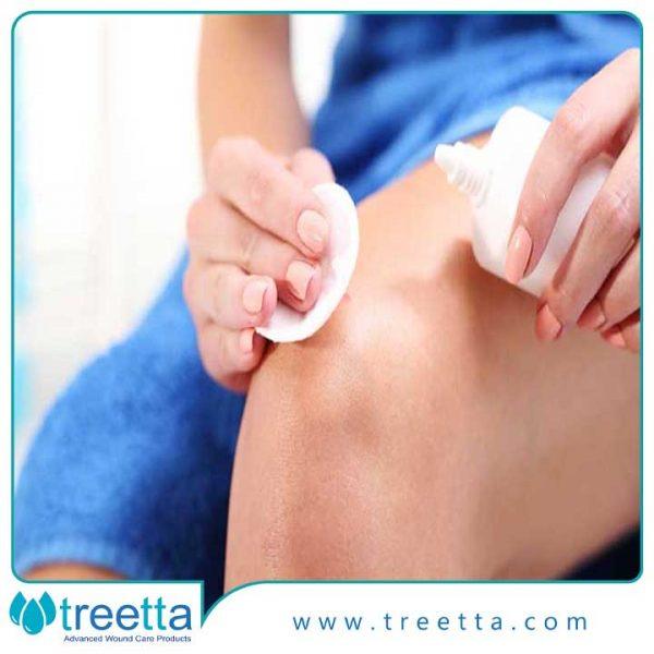 درمان زخم های سطحی