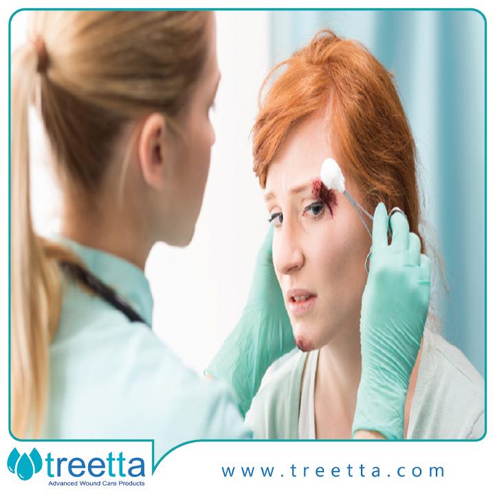 مراقبتهای اولیه از زخم تروما