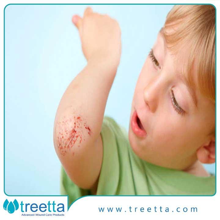 چگونه زخم کودکان را پانسمان کنیم-؟