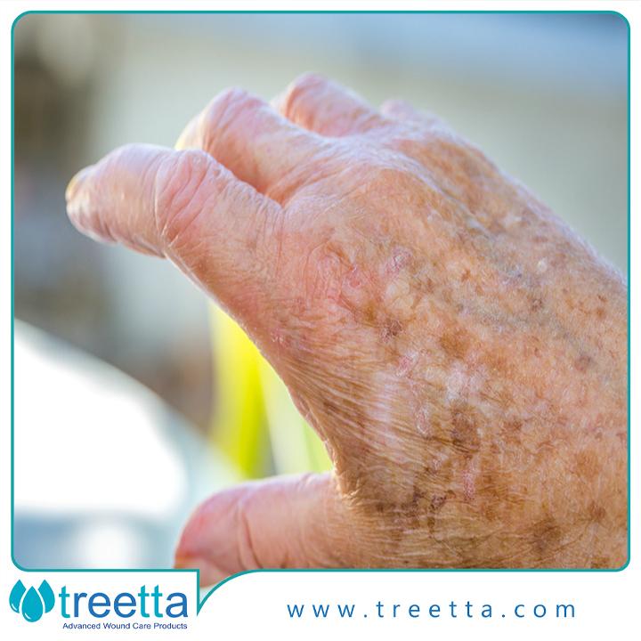 بیماریهای پوستی دوره سالمندی