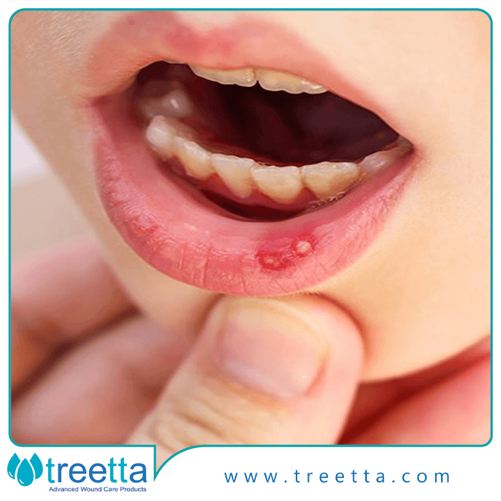 درمان زخم دهانی